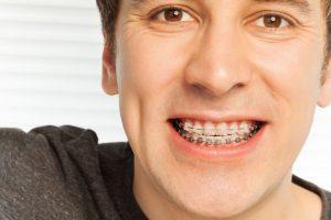 Ortodonzia per adulto